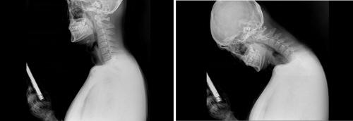 바른세상병원제공_스마트폰 사용 시 목 X-ray