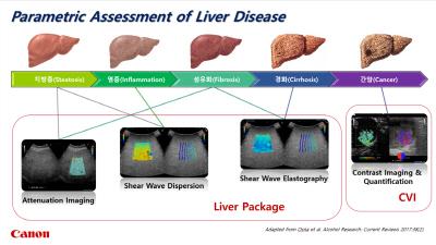 [첨부이미지] Liver Diseases