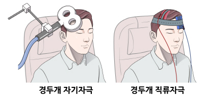 (사진)경두개 자기자극 치료(좌), 경두개 직류자극 치료(우)