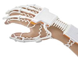 0517 로봇재활 치료기(smart glove)를 착용한 모습